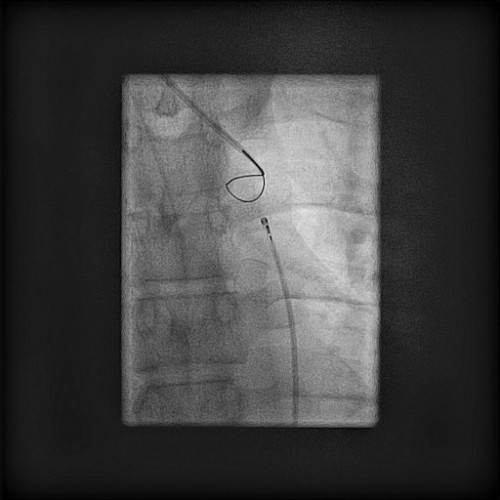 Snare as target in proximal aorta, wire in position before burning through.