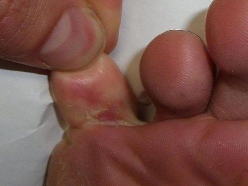 Foot blisters/healdove.com